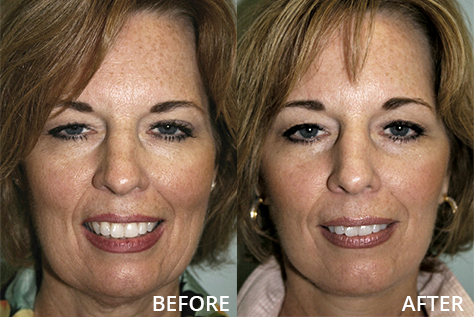 Female patient with face and brow lift, before and after