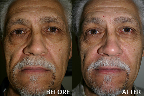 Male patient with dermal fillers at mouth and jowl, before and after