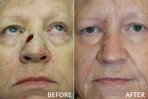 nasal reconstruction after cancer