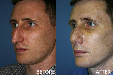 Before/after photo of male rhinoplasty patient
