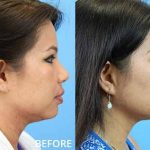 "Before and after photo of a patient who had Kybella injections in the skin under the skin to eliminate fat, or a ""double chin""."