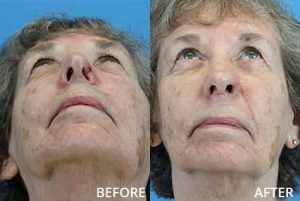 Before and after photo of a nasal reconstruction with a melolabial flap and ear cartilage graft
