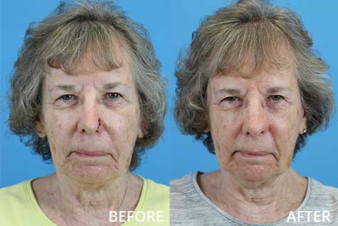 Before and after photo of a nasal reconstruction with a melolabial flap and ear cartilage graft.