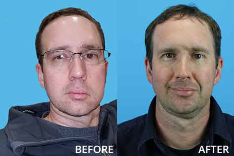 Before and after photo of a patient who had facial nerve surgery to restore facial muscle function and smile.