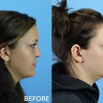Before and after photo of a patient who had septorhinoplasty to correct a nasal obstruction